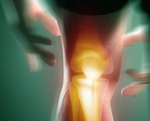 Ortopedia e Traumatologia | Specialità | NUBRA Medica