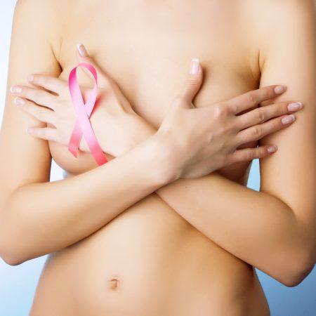 cancro-seno-1