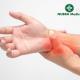 Artrite reumatoide e elettro-stimolazione