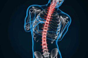 Riabilitazione della colonna vertebrale